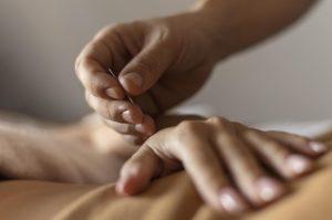 درمان با طب سوزنی