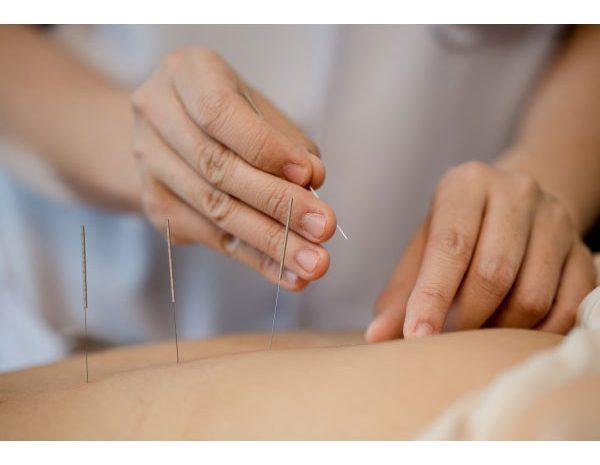 آموزش طب سوزنی